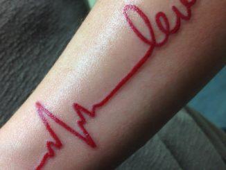 Lev heartbeat